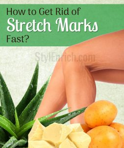 Home-remedies-to-get-rid-of-stretch-marks