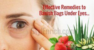 how-to-get-rid-of-eye-bags-stylenrich