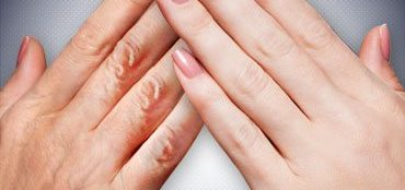 Home Remedies For Wrinkled Hands
