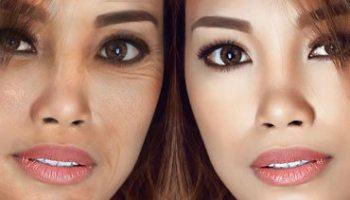 under eye wrinkles or eye creases causes and remedies
