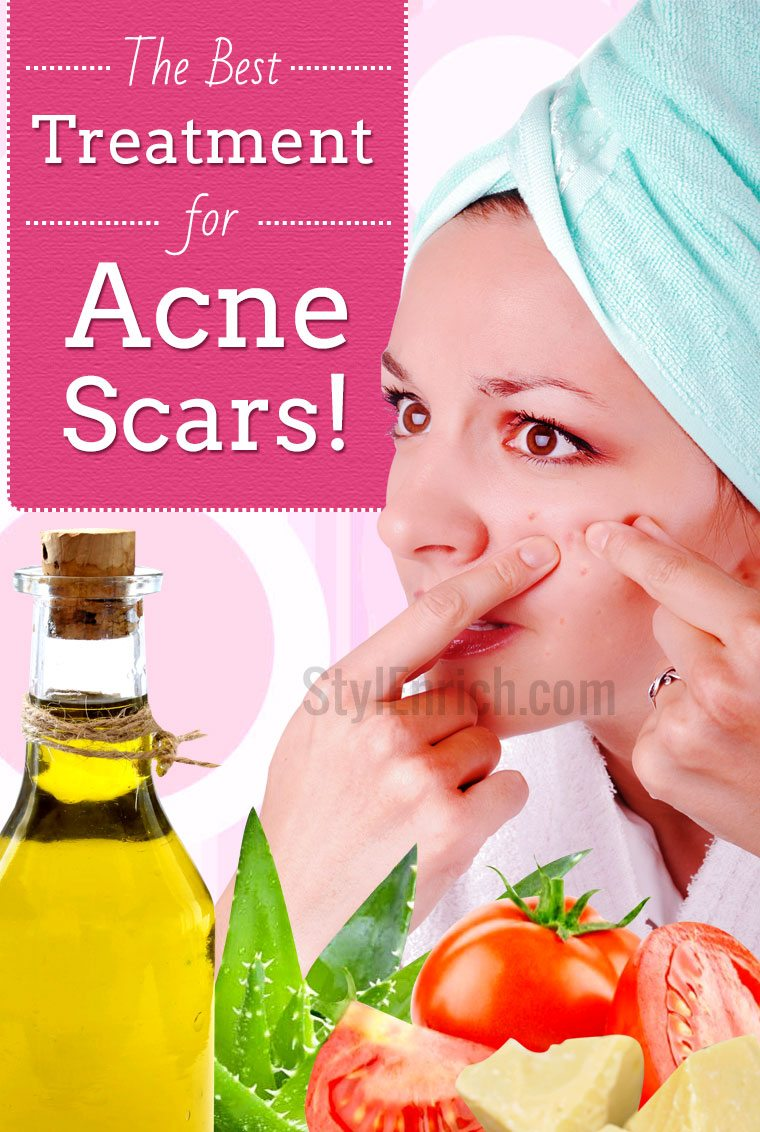 Treatment for acne scars