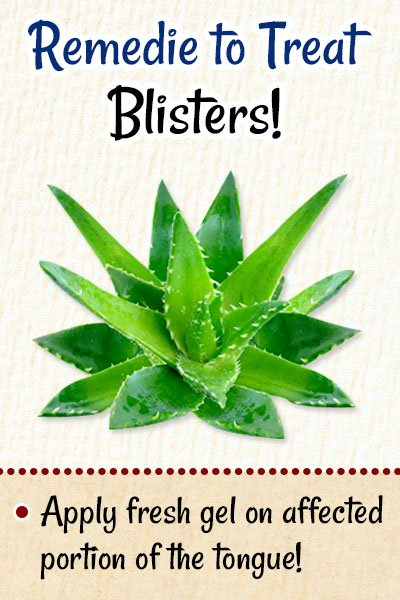 Aloe Vera To Get Rid of Blisters