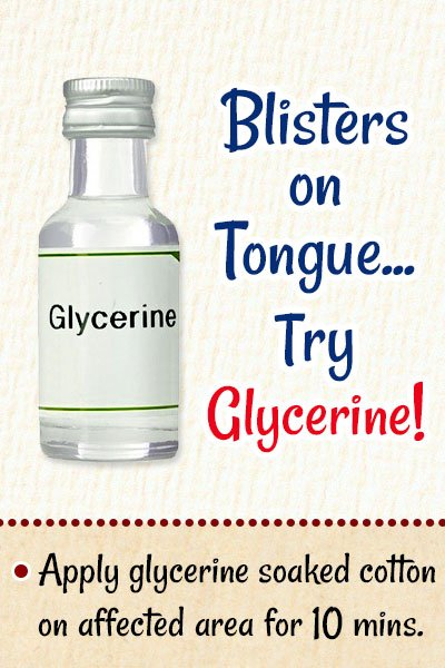 Glycerin For Blisters on Tongue