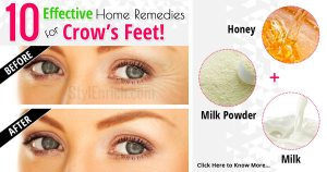 Home remedies for crow's feet