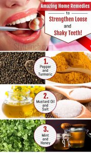 Home Remedies for Shaky Teeth