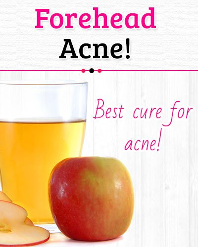 Apple Cider Vinegar to Get Rid of Forehead Acne