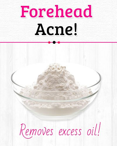 Baking Soda to Get Rid of Forehead Acne