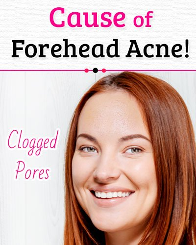 Clogged Pores Causes of Forehead Acne