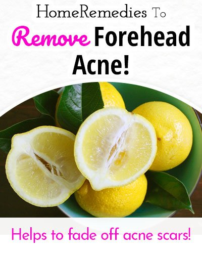 Lemon Juice to Remove Forehead Acne