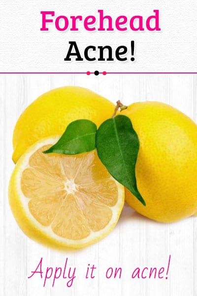 Lime Juice to Get Rid of Forehead Acne