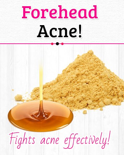 Mustard Powder and Honey to Get Rid of Forehead Acne