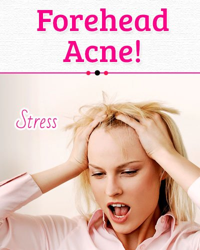 Stress Causes of Forehead Acne