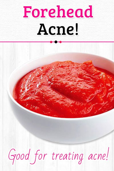 Tomato Skin Mask to Get Rid of Forehead Acne