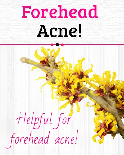 Witch Hazel to Get Rid of Forehead Acne