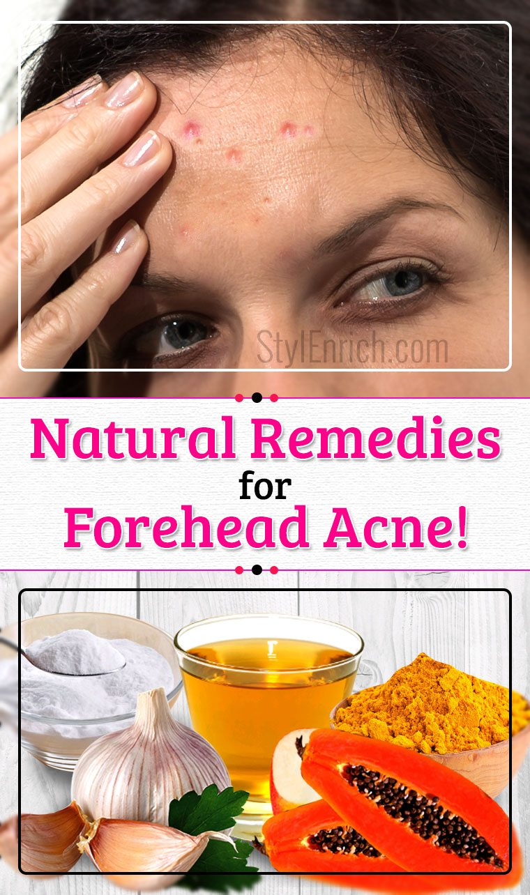 Natural remedies for pimples on forehead