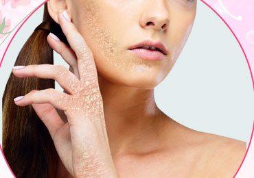Psoriasis Skin Care