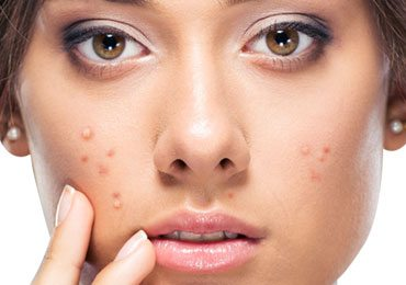 Simple ways to get rid of pimples fast