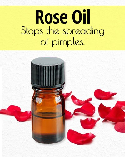 Rose Essential Oil for Acne Treatment