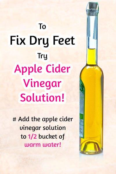 Apple Cider Vinegar Solution to Fix Dry Feet