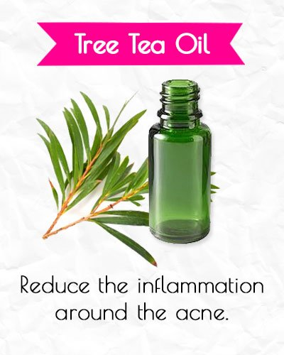 Tree Tea Oil for Acne Treatment