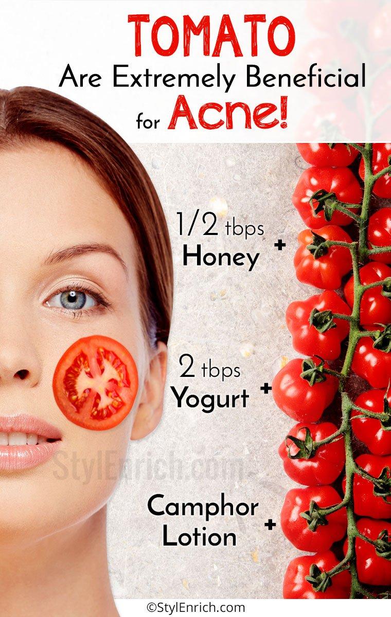 Tomato for Acne