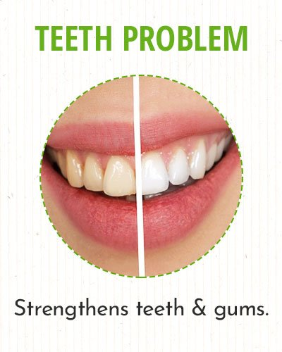 Amla To Get Rid ofTeeth and Gum Problems
