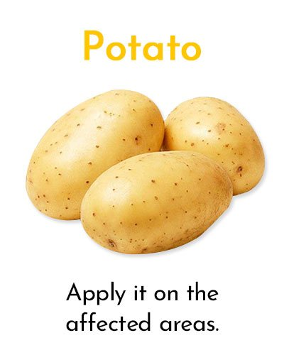 Potato for Minor Cuts and Grazes