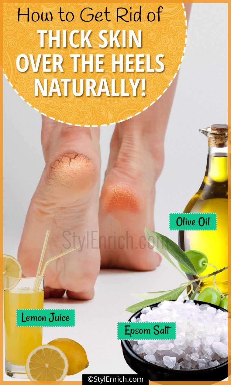 How To Remove Dead Skin From Feet?