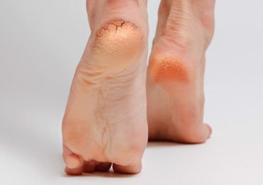 How To Get Rid Of Thick Skin Over The Heels Naturally?
