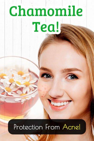 Chamomile Tea for Acne