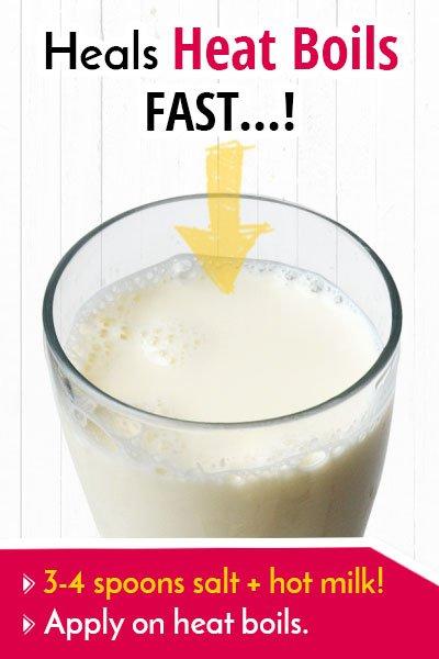 Milk To Heal a Heat Boil Fast
