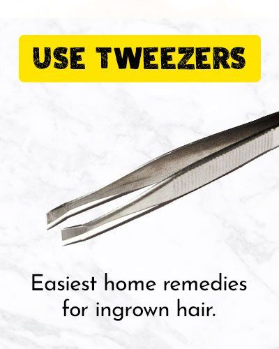 Use Tweezers To Get Rid Of Ingrown Hair