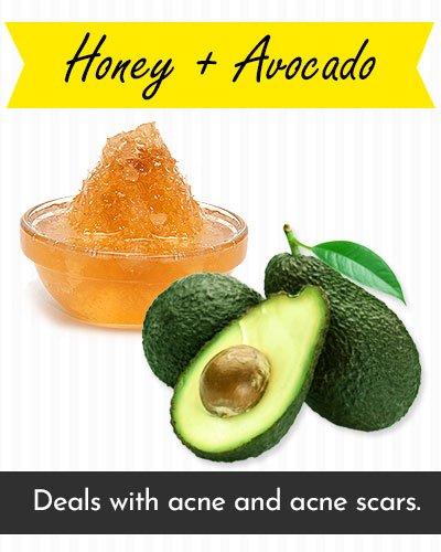 Honey & Avocado Face Mask For Acne