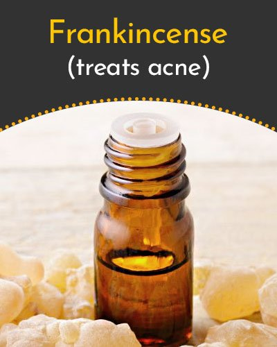 Frankincense Essential Oil for Scars
