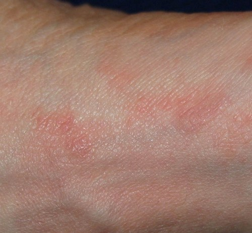 Scabies Treatment Kill Scabies Now YouTube