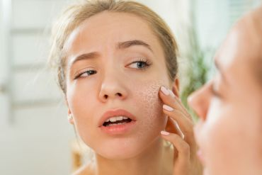 skincare routines you should follow to avoid dry skin