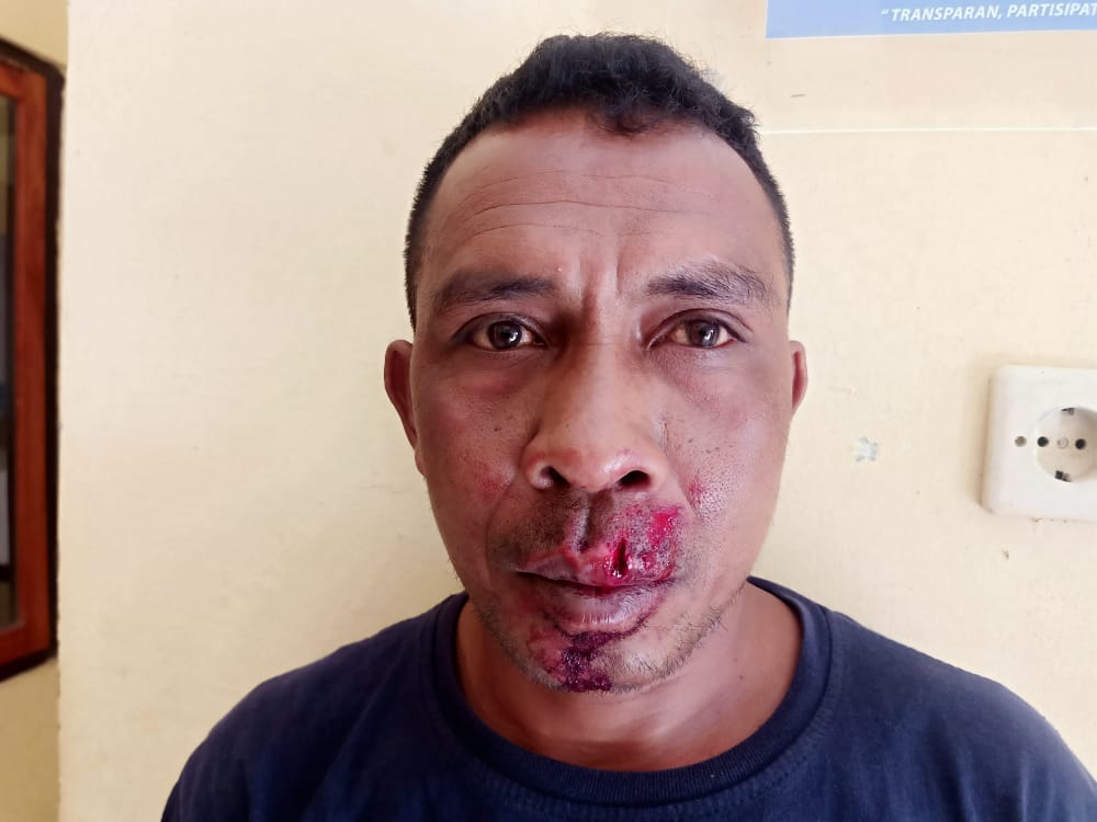Alasan Sepele, Oknum Lurah Olafuliha'a di Rote Ndao Aniaya Sopir Truk Hingga Babak Belur