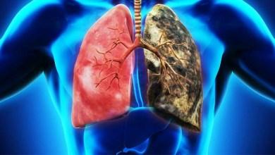Photo of Rokok, Penyebab Terbesar Kanker Paru-paru