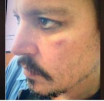 Photo of Mahkamah Tinggi Britain dedah foto muka Johnny Depp lebam ditampar bekas isteri