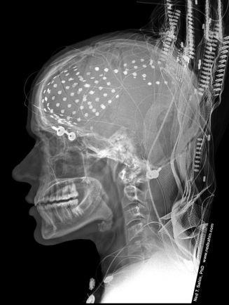 electrodes_seizure