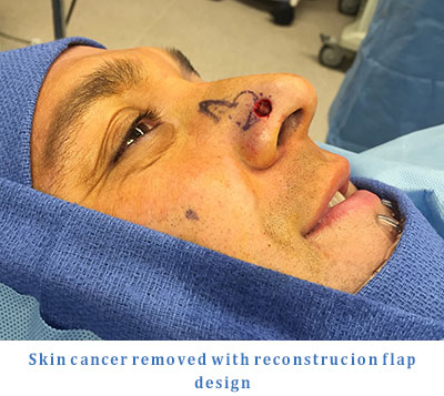 Skin Cancer Head Neck Surgeons Treat HoffmanProspect Heights IL
