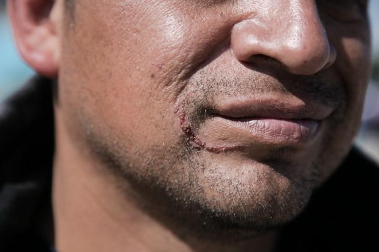 Una de las marcas tras una agresión a Jesús Díaz, tesorero del sistema de administración de aguas. Fotografía: Giulia Iacolutti