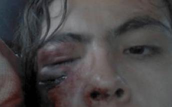 Diego Medina, estudiante de Antropología de la universidad de chile, brutalmente herido por un impacto de lacrimógena en su rostro a las 7:30 AM de la mañana del día jueves 9 de junio. Previo a la marcha.