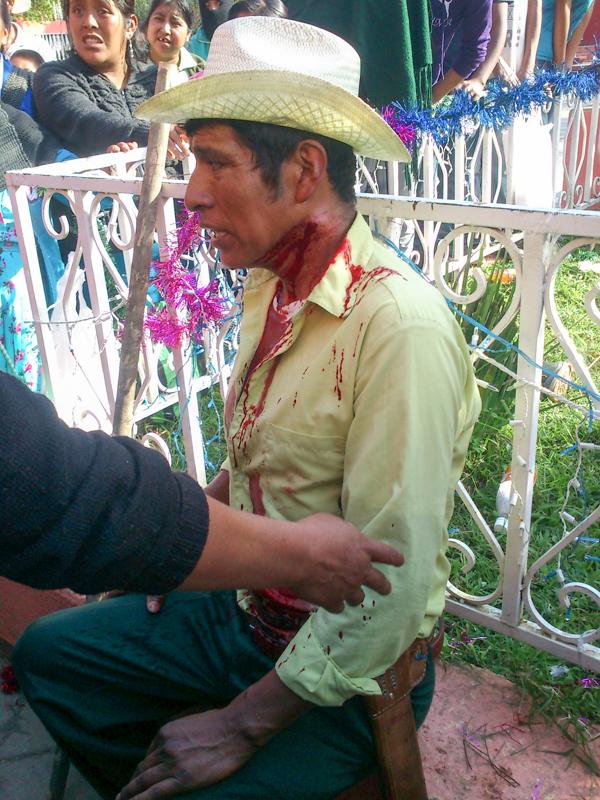 Miembros de la asamblea comunitaria heridos el 14 de diciembre