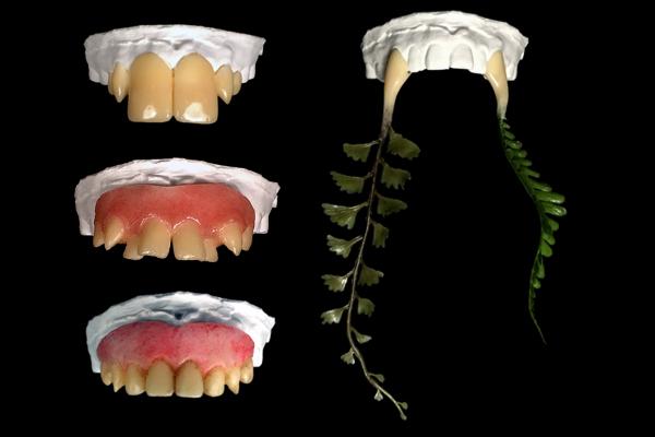 特殊メイク用(撮影用)義歯