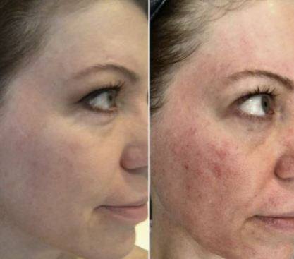 microdermabrasion-nyc-before-and-after-suessmoments