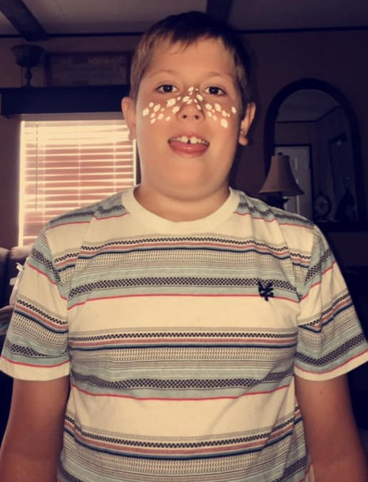 Logan Cline with stickers on his face