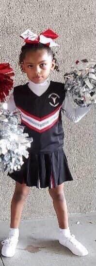 Billie Williams cheerleader with black eye