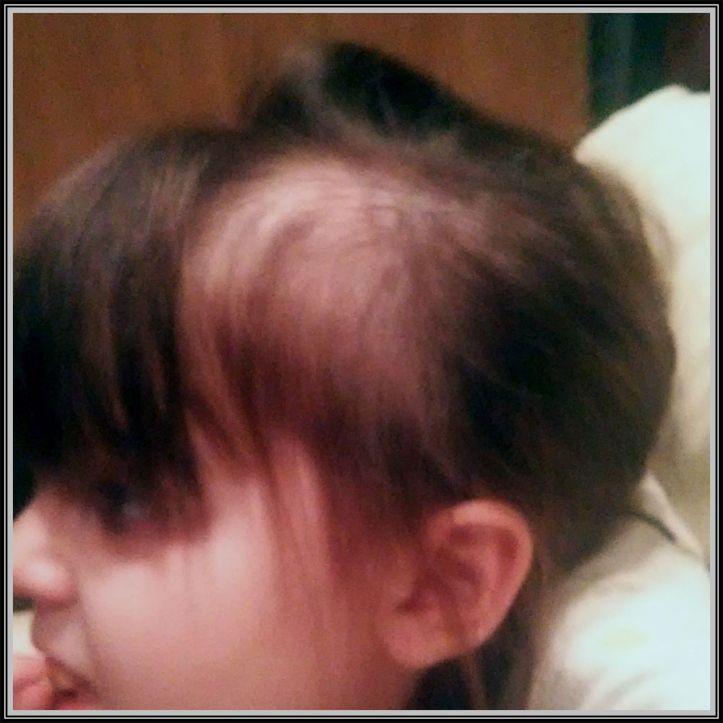 Averylee Hobbs abuse balding hair loss