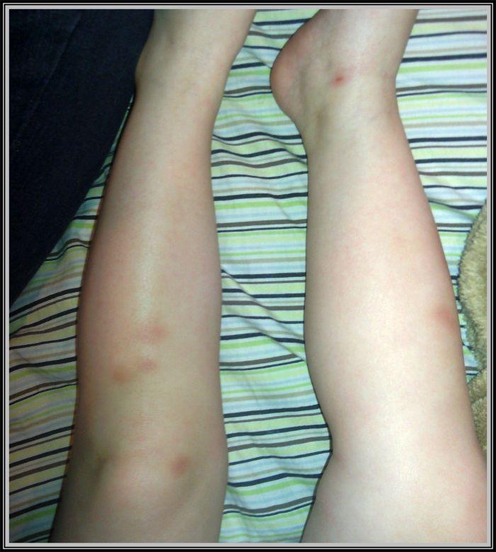 Averylee Hobbs abuse bruises
